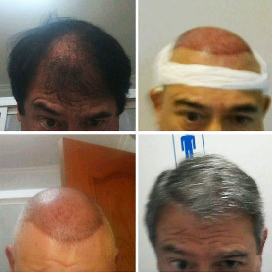 injerto capilar implante clinica levante
