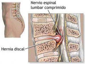 Puedo Hacer Vida Normal Con Una Hernia Tratamientos Y Alternativas Clínica Levante