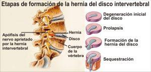 hernia discal lumbar disfuncion erectil